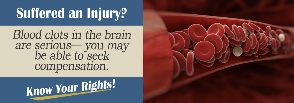 Brain Blood Clot Personal Injury Lawyer