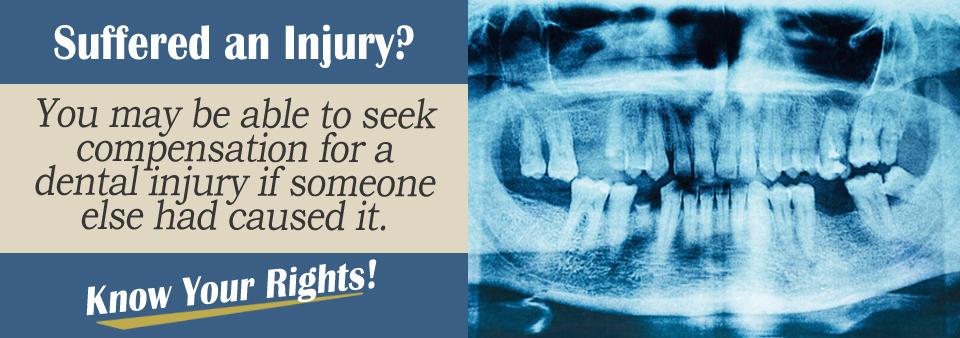 Dental Injuries Personal Injury Lawyer