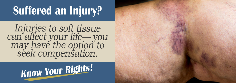 Soft Tissue Injury From an Auto Accident
