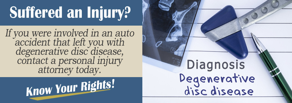 Can Auto Accidents Cause Degenerative Disc Disease?